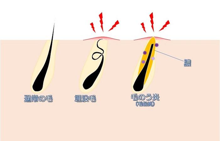 埋没毛と毛のう炎イラスト